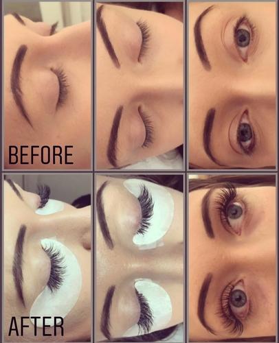 Cosmetic Procedures - Victoria Valentine Make-up Artist