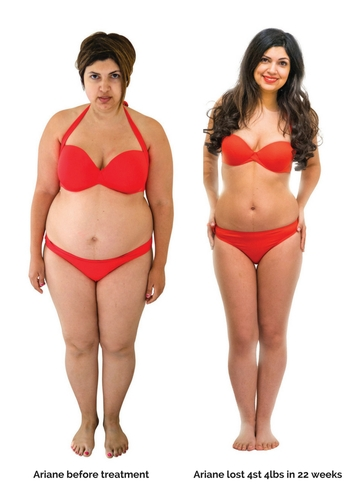 Weight Management - Health & Aesthetics Skin, Laser and Body clinic